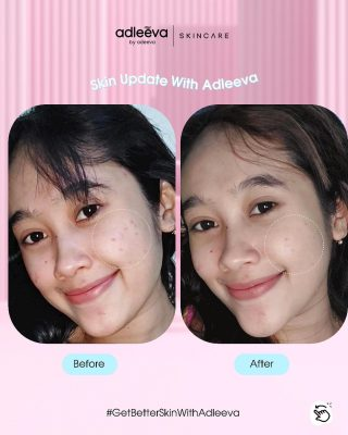Let's start your plan to #GetBetterSkinWithAdleeva with Whitening Glow Series! 😍  Melalui segala macam progress pasti akan mulai terlihat hasilnya. Berapa lama ? It's not about how long but how you can be kind to your skin. Semakin kamu paham akan kebutuhan kulitmu semakin mudah mendapatkan hasil yang diinginkan.  We can't wait to see you progressed even further! 💞  Yuk tunggu apalagi, You can order and try our product at : 📌Shopee : Adleeva Official Shop 📌Tokped : Adleeva by Adeeva 📌Whatsapp : 0811-2117-047 📌Our Distributor & Agent (the nearest Distributor or agent in your city) or you can click link on Bio!❣️  #GetBetterSkinWIthAdleeva #adleeva #adleevabyadeeva #adleevanewinnovation #adleevanewlook #adleevatesti #adleevatestimonial #adleevareview